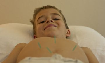 Study: Acupuncture Works As Pain Reliever for Children